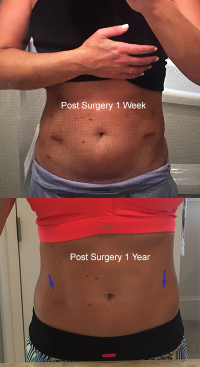 1 week and 1 year post ELS surgery